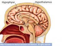 Гипоталамический синдром — Depressia.com