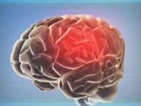 Шизофрения. Современные методы лечения шизофрении.
