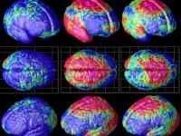 Изменения в головном мозге при шизофрении и депрессии — Depressia.com