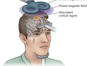 транскраниальная магнитная стимуляция