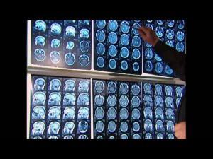 Нарушения памяти в старости. Болезнь Альцгеймера. Лечение слабоумия.